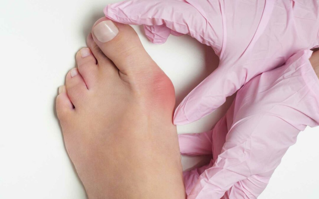 A Guide For Bunions