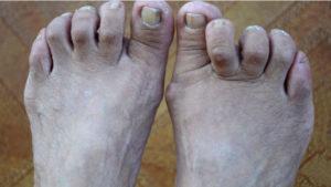 Basic Foot Care – Podiatry Associates