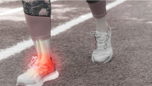 Sports Medicine – Podiatry Associates