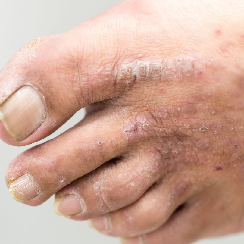 services-skin-diseases - Podiatry Associates, P A