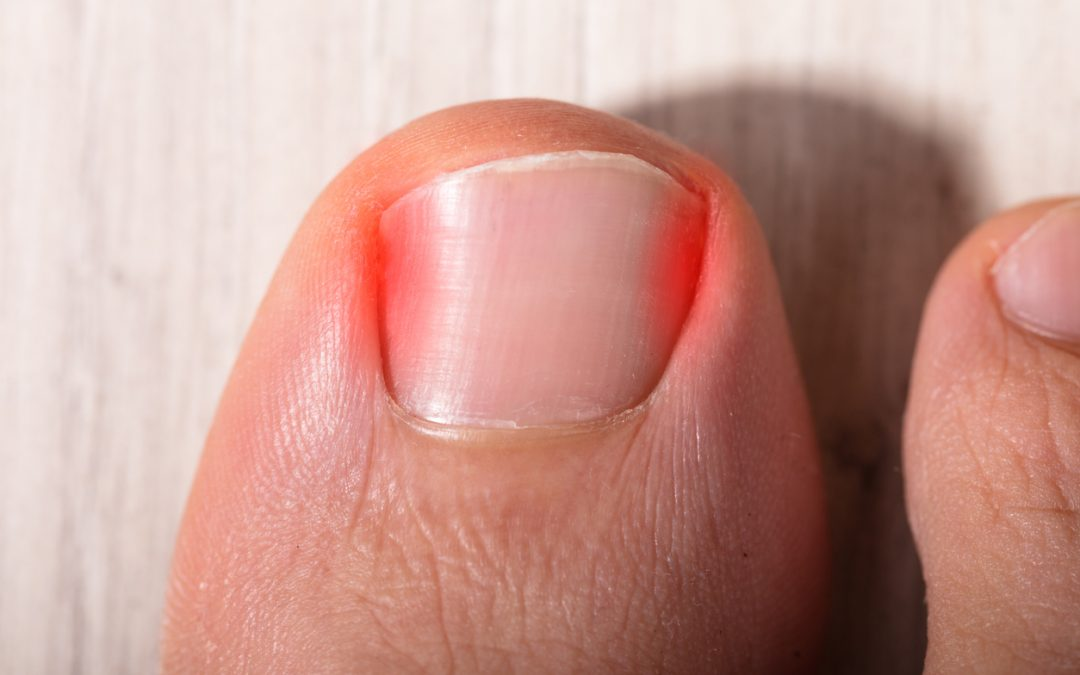 When Should You Go to the Doctor for an Ingrown Toenail?