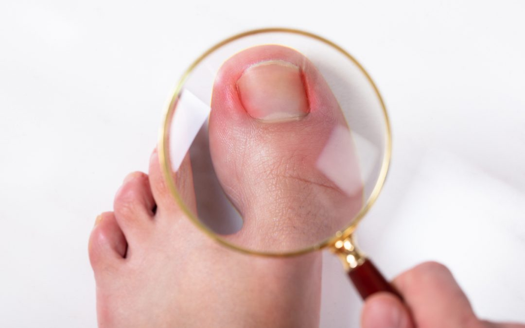 What are the Misconceptions about Ingrown Toenails?