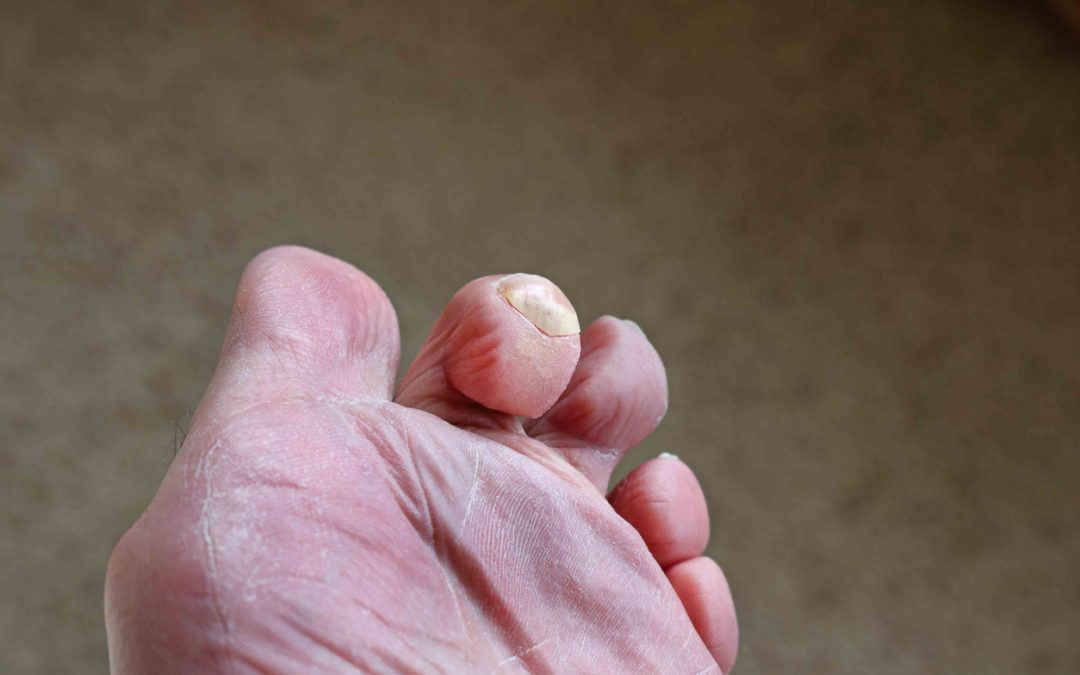 How Do You Fix a Hammer Toe?