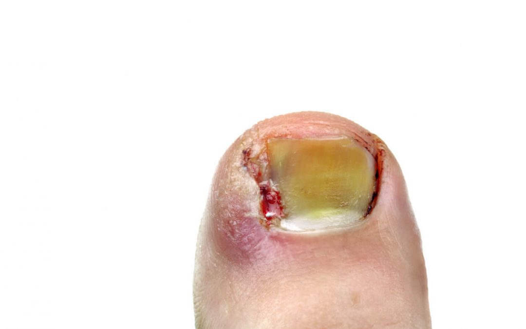 What Happens If an Ingrown Toenail Goes Untreated?
