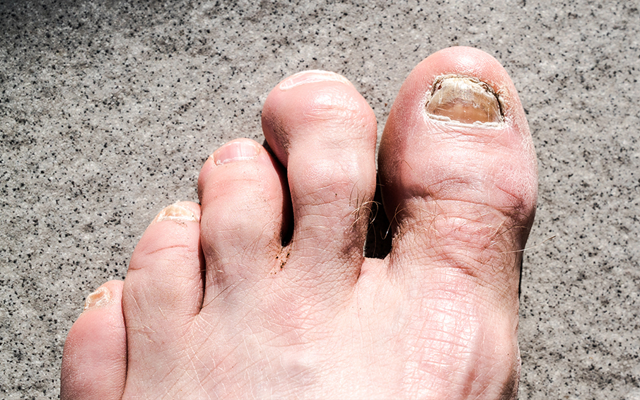 3 Ways You Can Prevent & Cure Hammer Toes