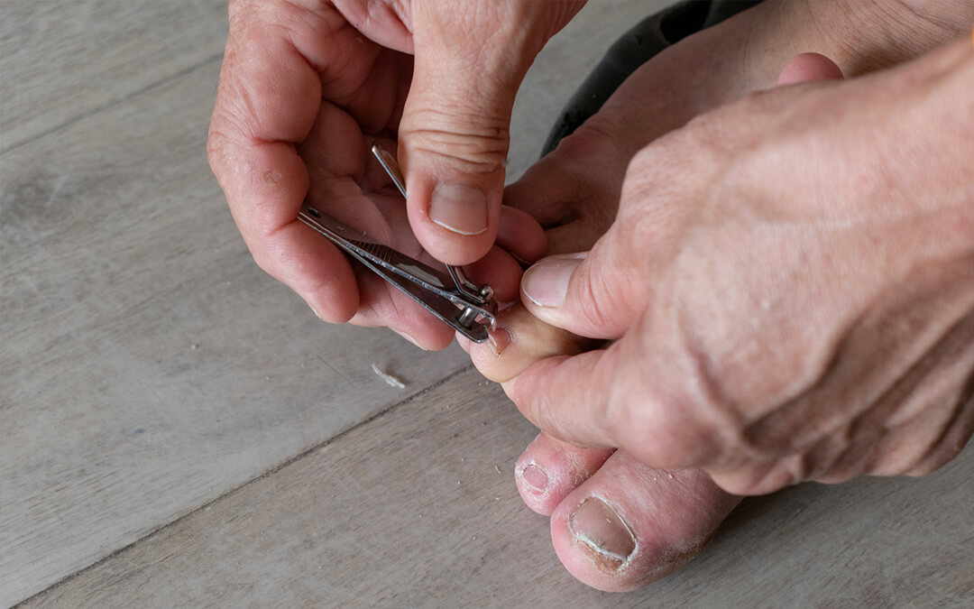 The Common Mistakes People With Ingrown Toenails Make