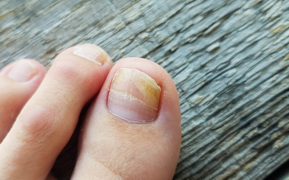 Say Goodbye to Ingrown Toenails with Podiatry Associates