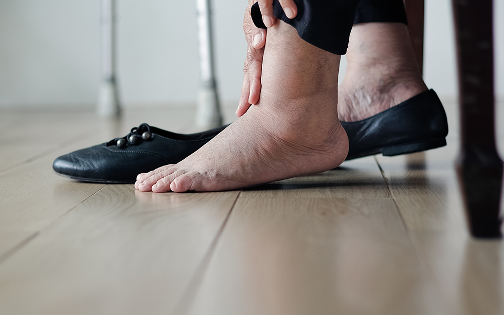 Diabetic Foot Ulcers: Causes and Treatments