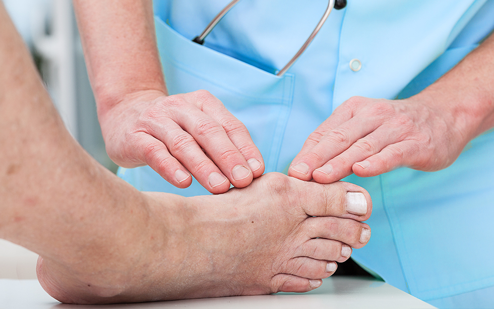 How To Treat A Bunion Before It Gets Worse